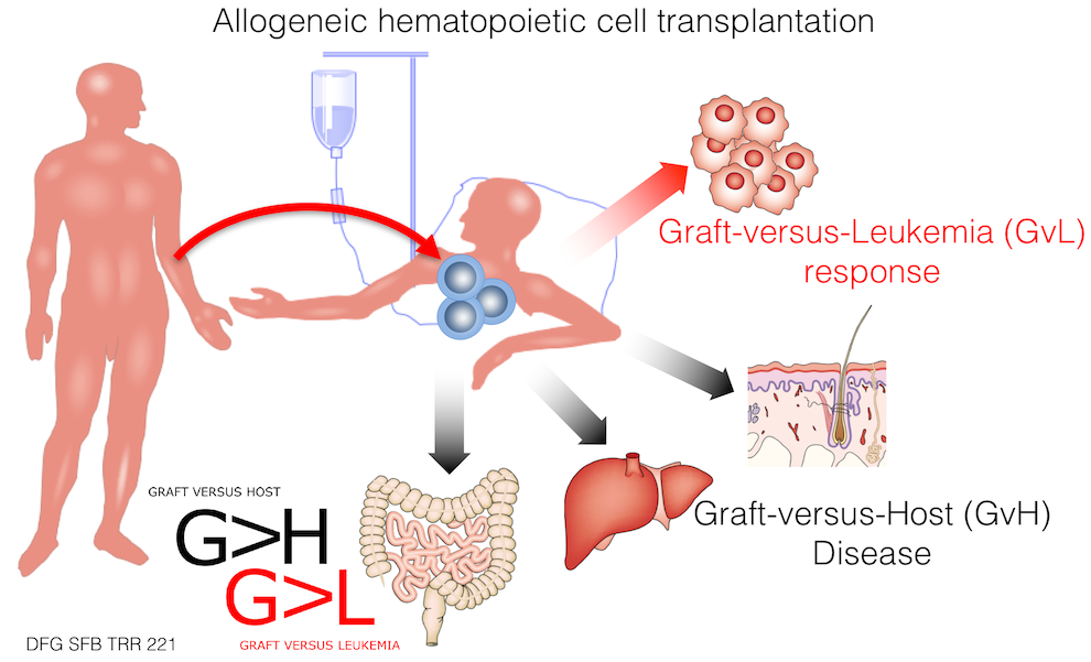 Graft-versus-Leukemia, Graft-versus-Host disease, Andreas Beilhack, GvHD laboratory, Würzburg University Hospital, Germany, Stanford University